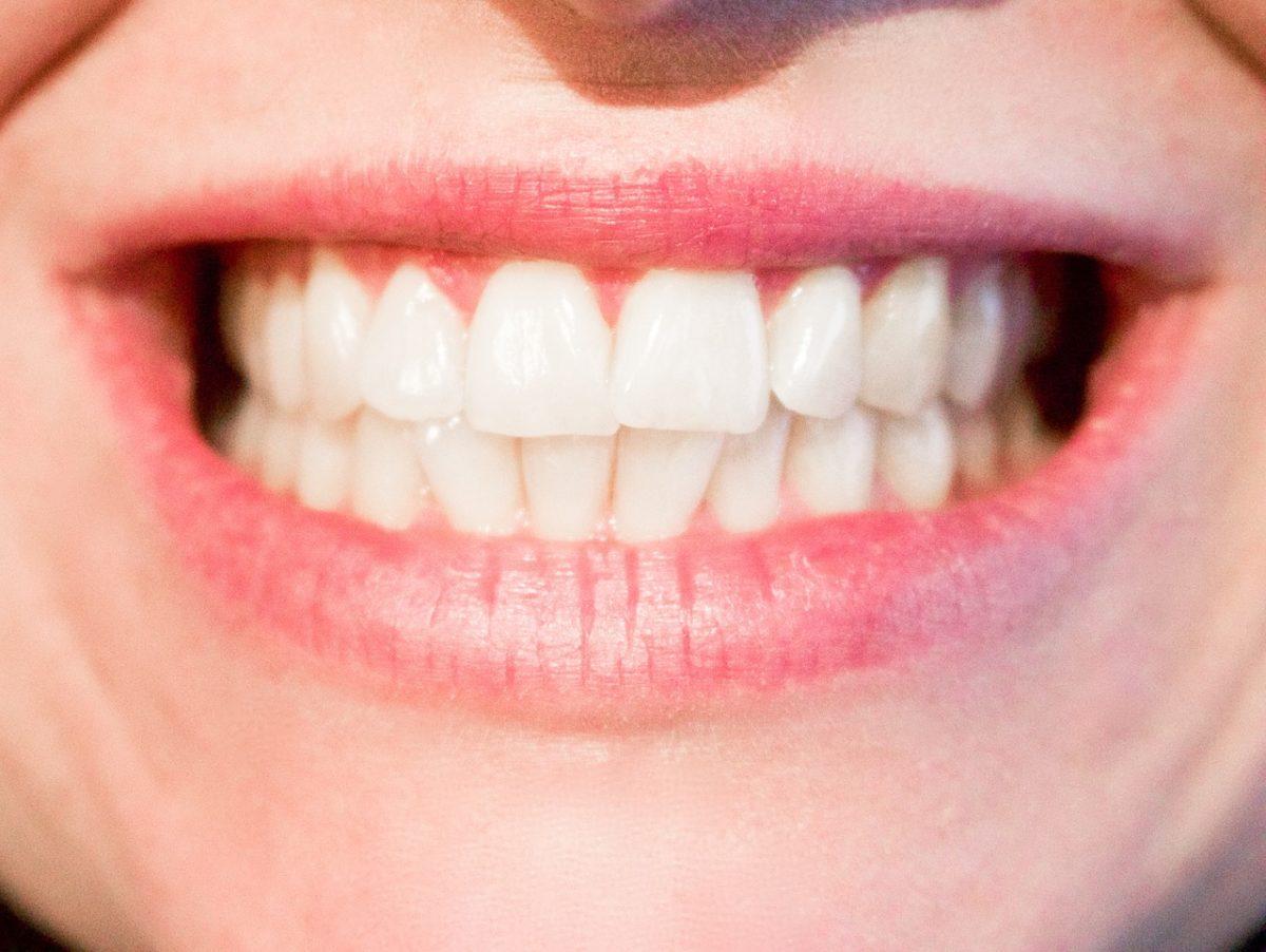 Obecna technologia wykorzystywana w salonach stomatologii estetycznej być może spowodować, że odzyskamy piękny uśmiech.
